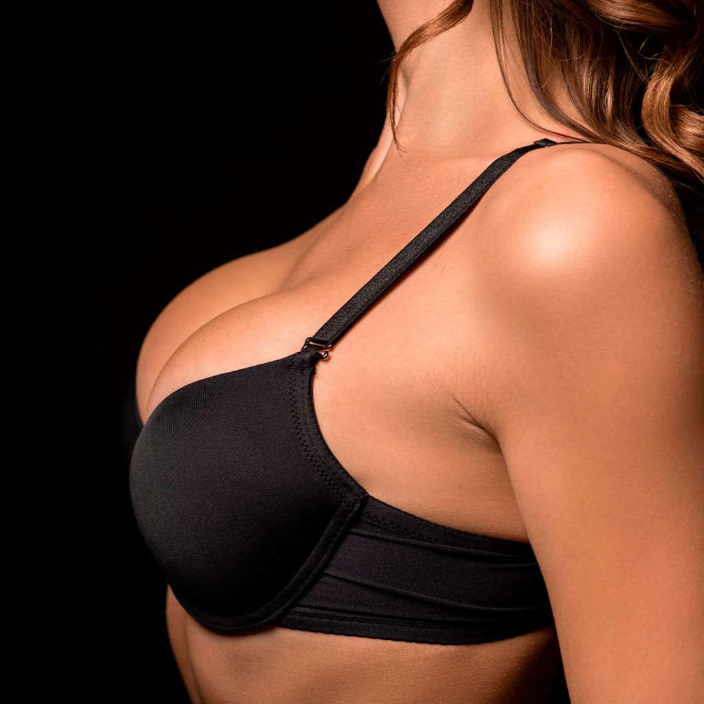2 Mastopexy Breast Lift