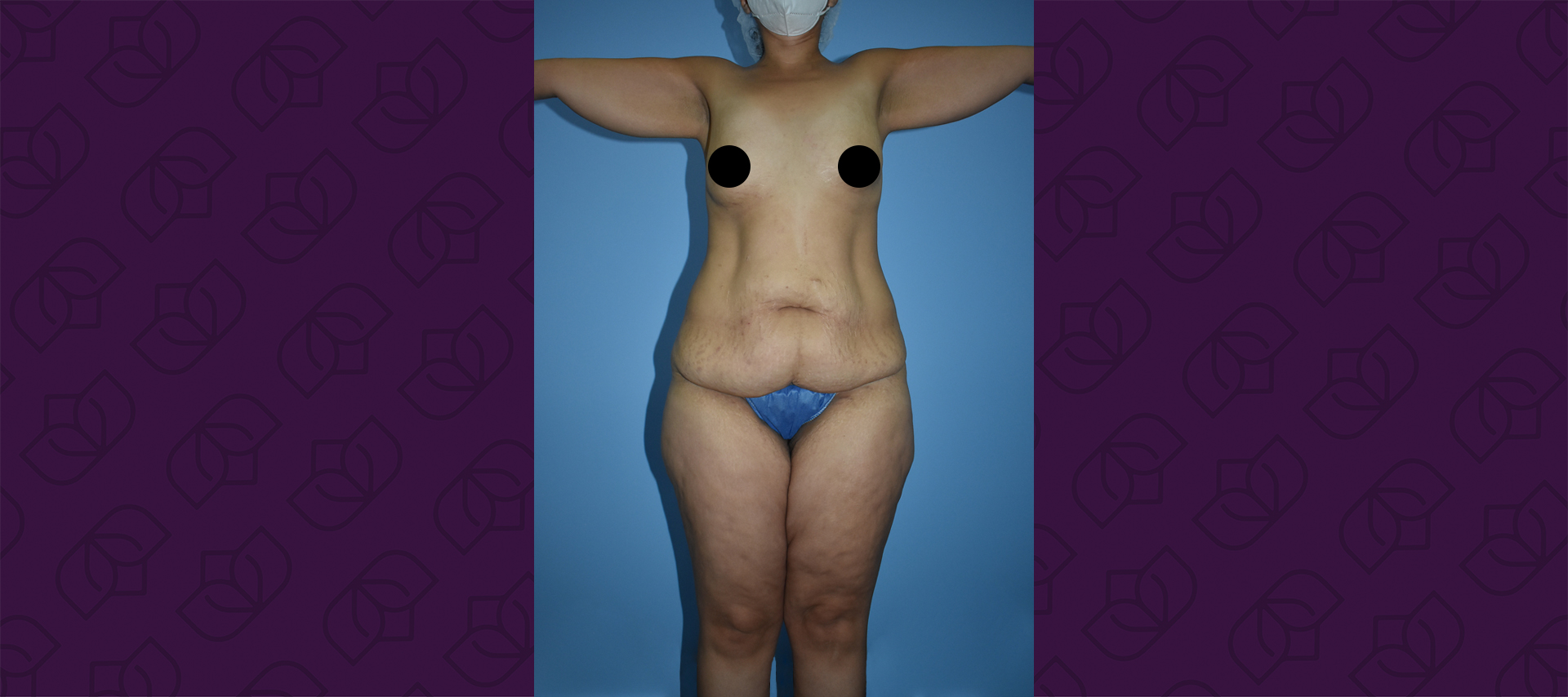 before ectended tummy tuck
